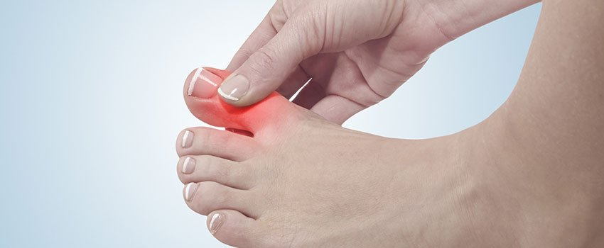 Everything You Need to Know About Gout